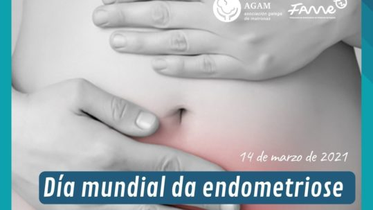 AGAM dia mundial endometriose 2021